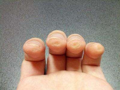 ギターで指に豆